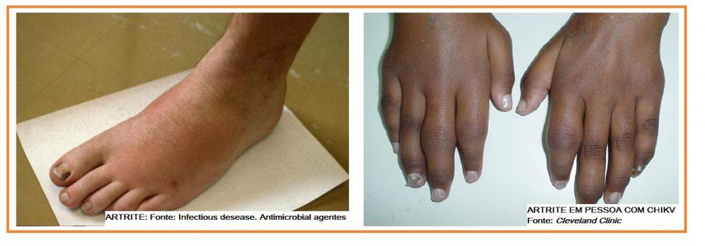 artrite-em-pessoas-com-chikungunya