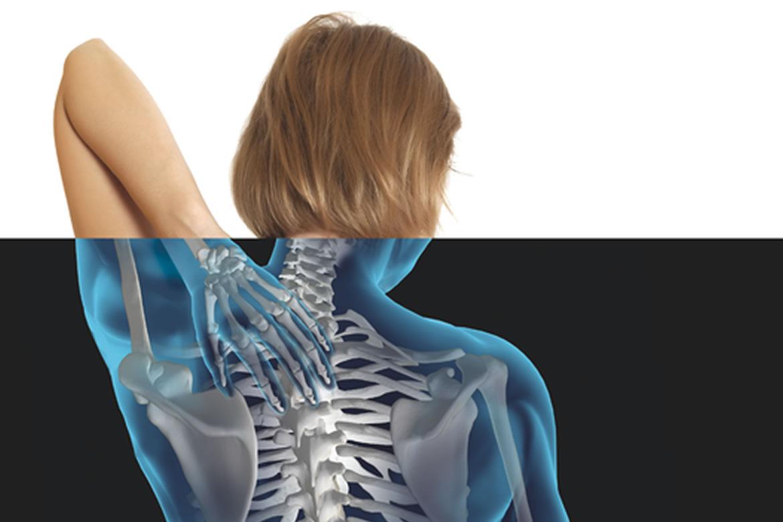 osteomielite: saiba mais sobre ela