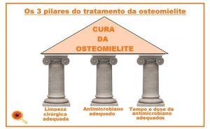 Osteomielite: Saiba Mais Sobre esta Infecção - Dra. Keilla Freitas Infectologista