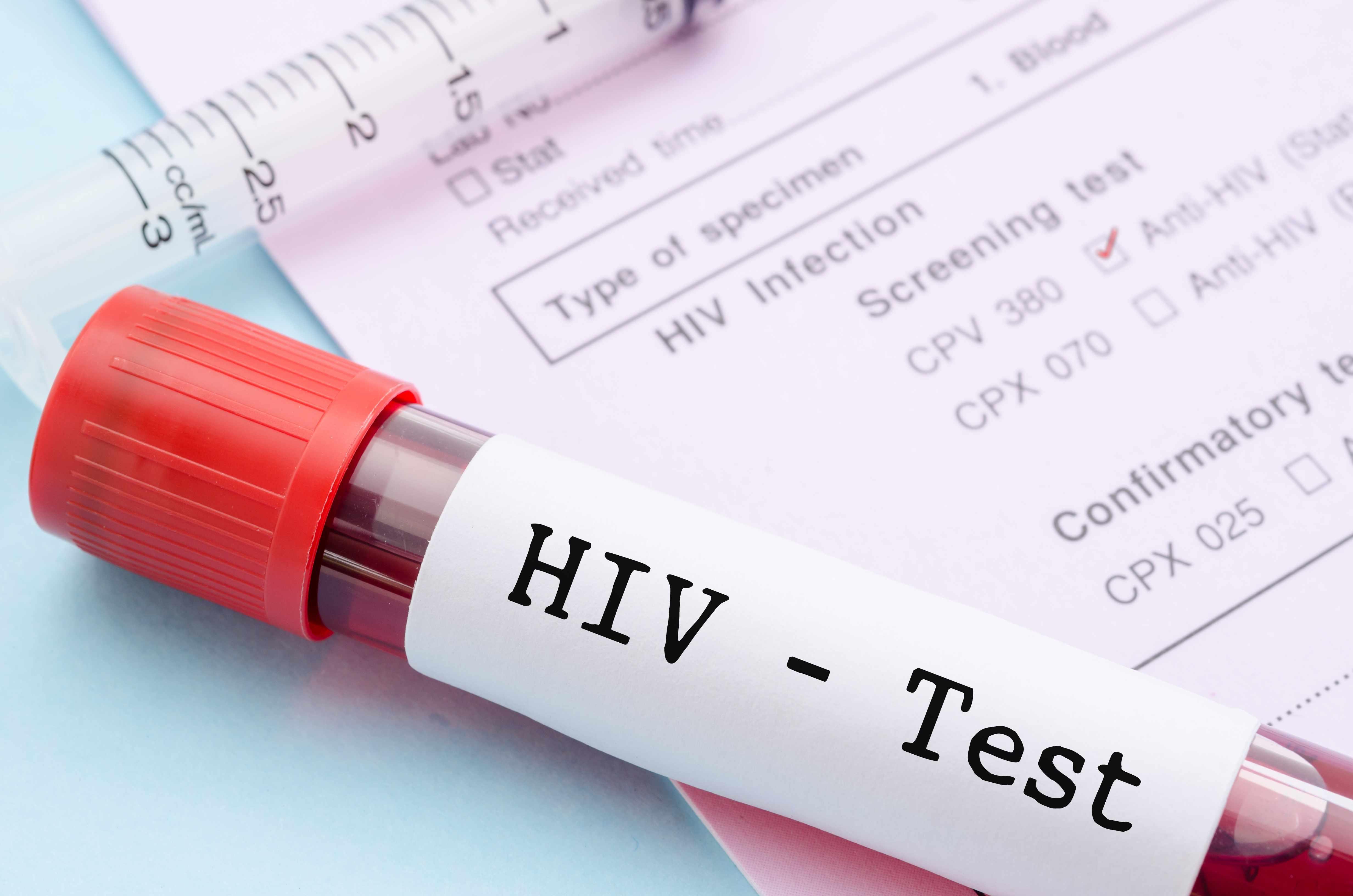 Sintomas de infecção recente pelo HIV