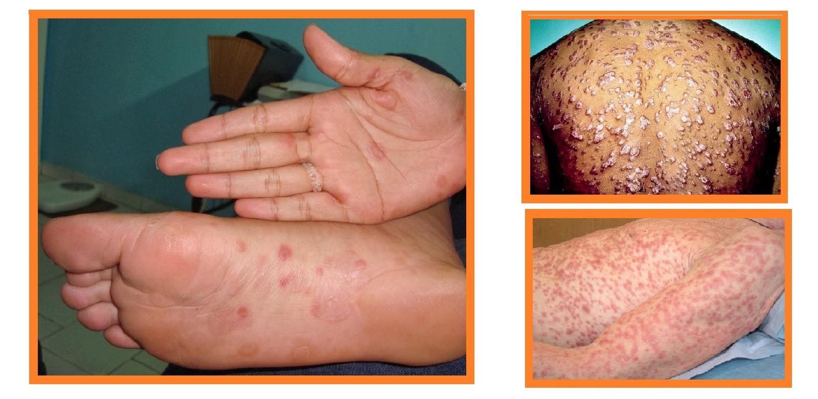 Sífilis-Sintomas - Lesões cutâneas - Sífilis secundária