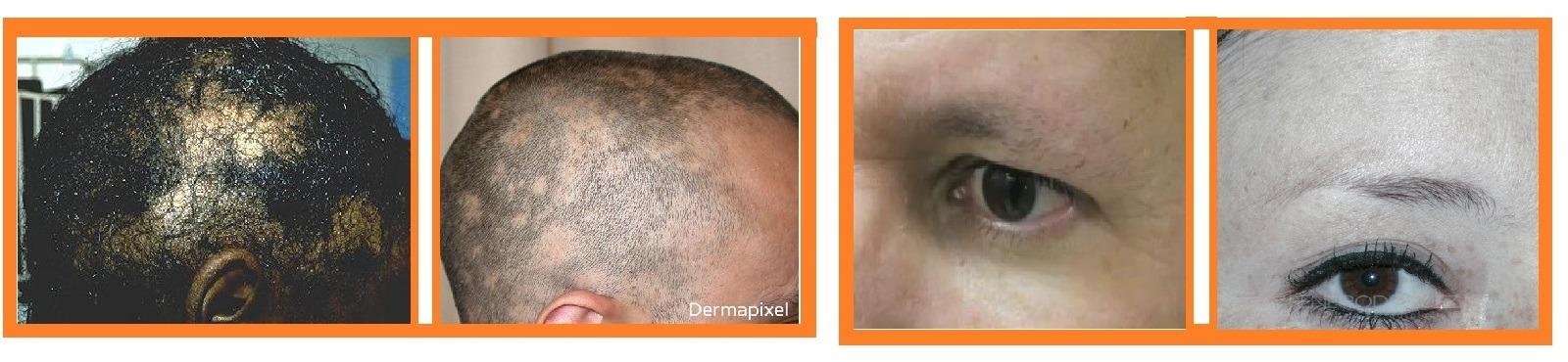 Sífilis Sintomas - Alopecia sifilítica - Fase secundária
