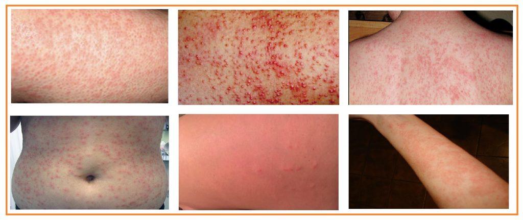 Causas de Febre: Quando nos preocupar?