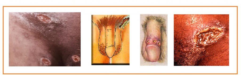 Cancro mole ou cancroide