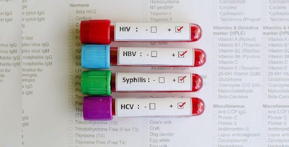 Infecções Sexualmente Transmissíveis - Infectologista SP
