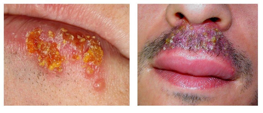Vírus Herpes Simples Tipo 1 e 2