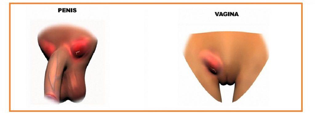Cancro mole ou bubo fotos 58