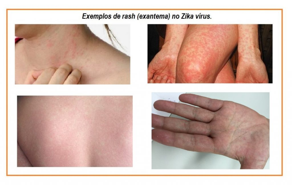 exantemano-zika-virus