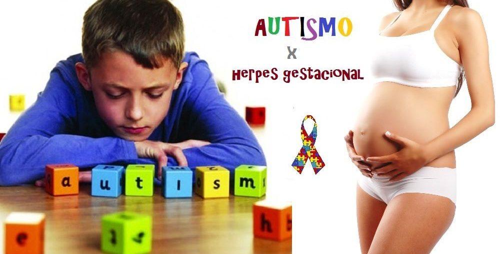 Herpes na gravidez aumenta risco de autismo