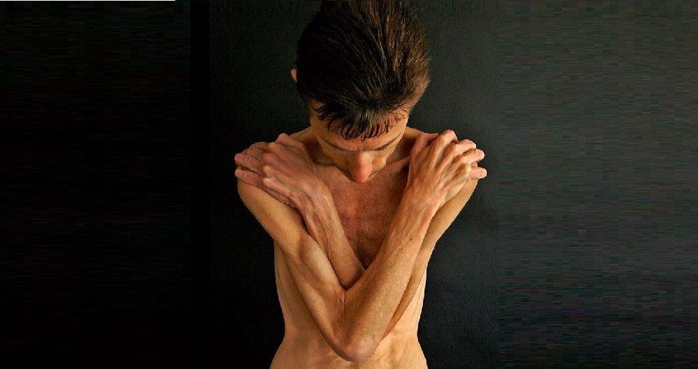 Perda de peso associada ao HIV