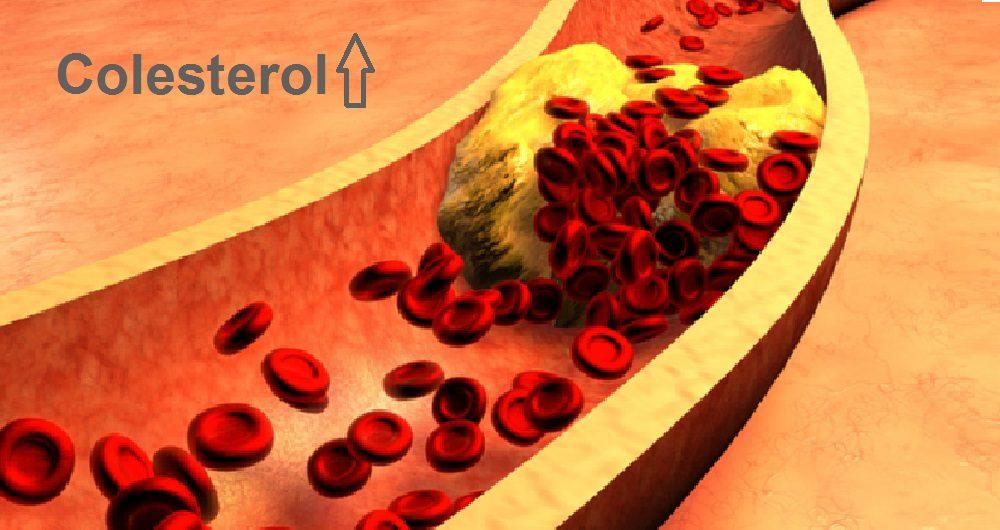 Novo medicamento para Tratamento do colesterol em pacientes HIV