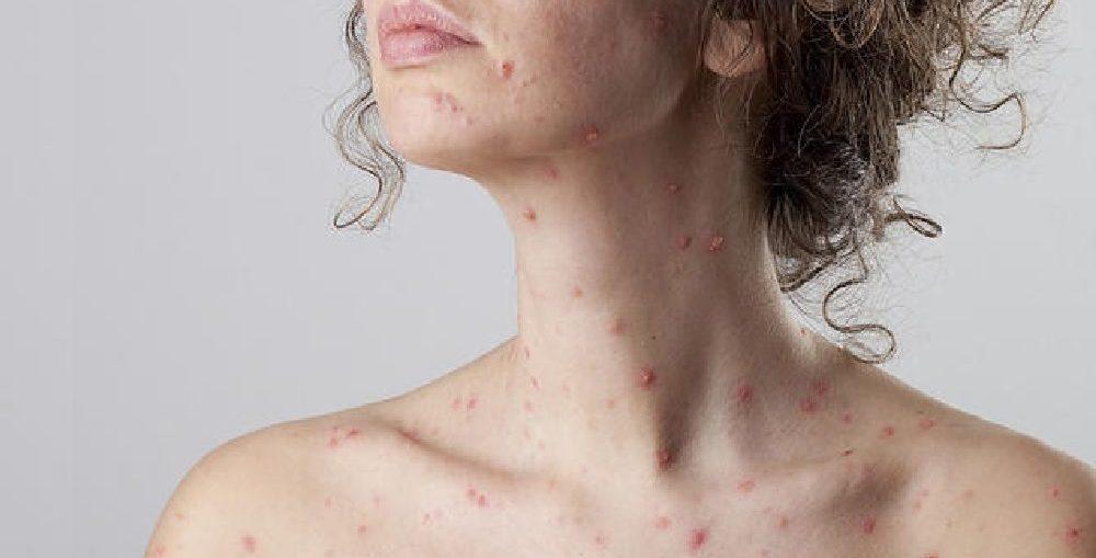 Infectologista - Catapora: Saiba mais