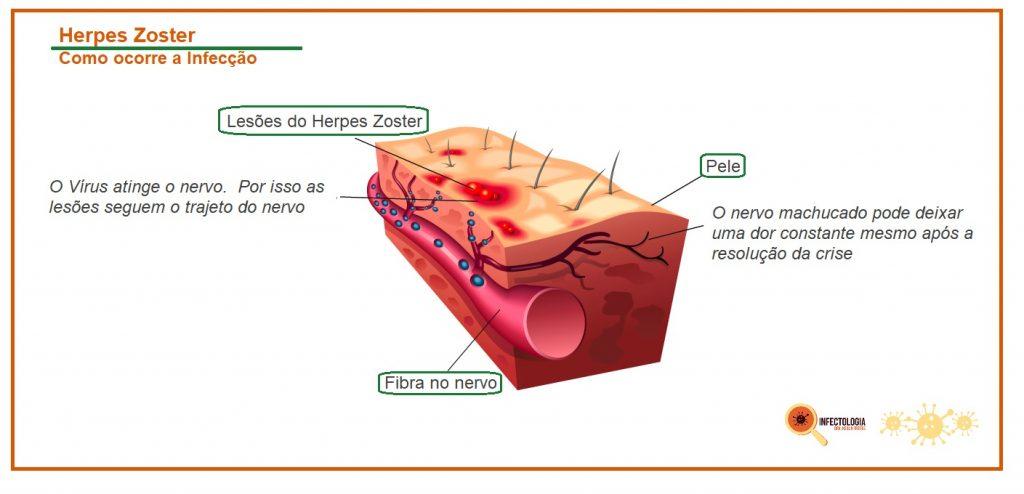 Herpes Zoster: Saiba mais