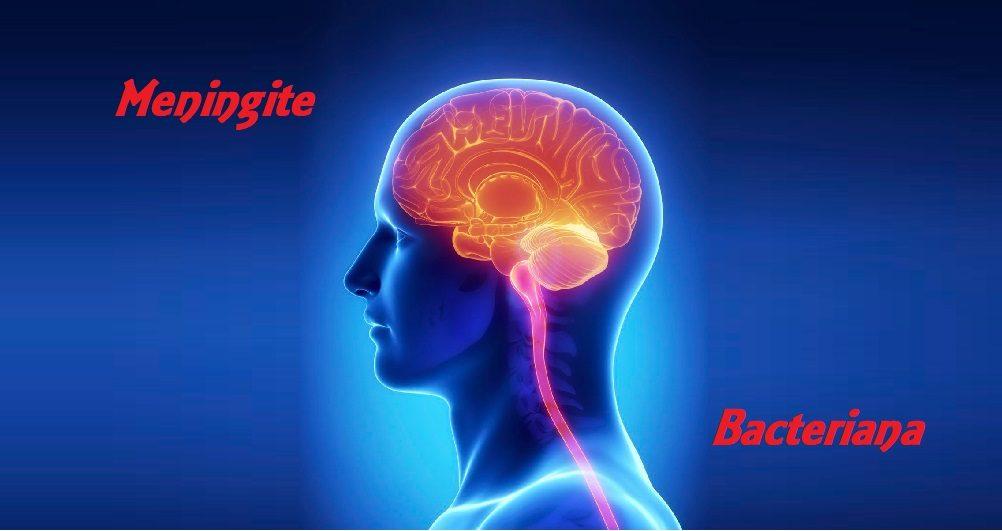 Meningite Bacteriana: o que você deve saber