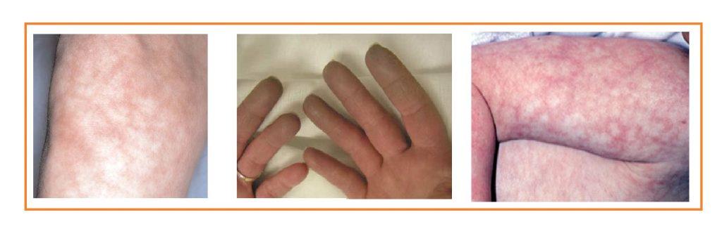 Infecção meningocócica