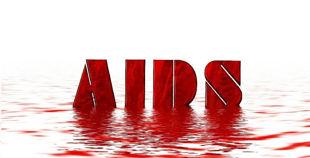 Infectologista - Sintomas da AIDS