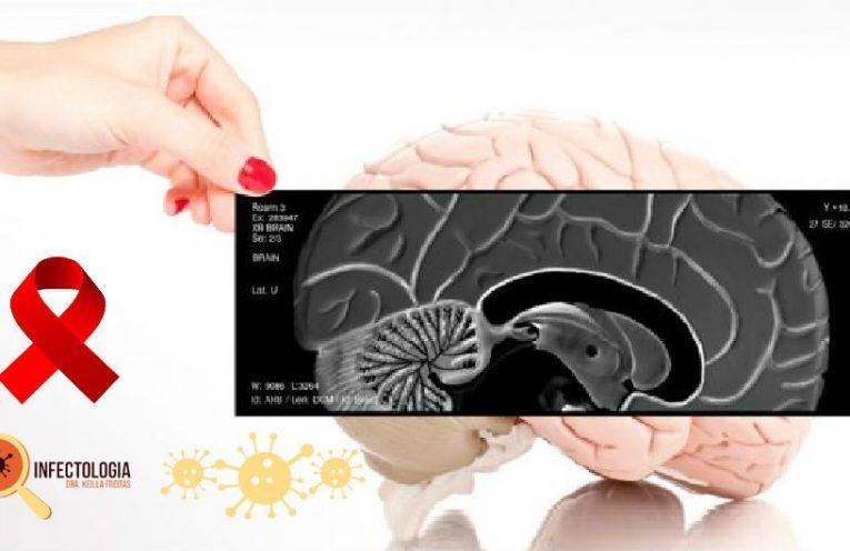 Problemas neurológicos do HIV