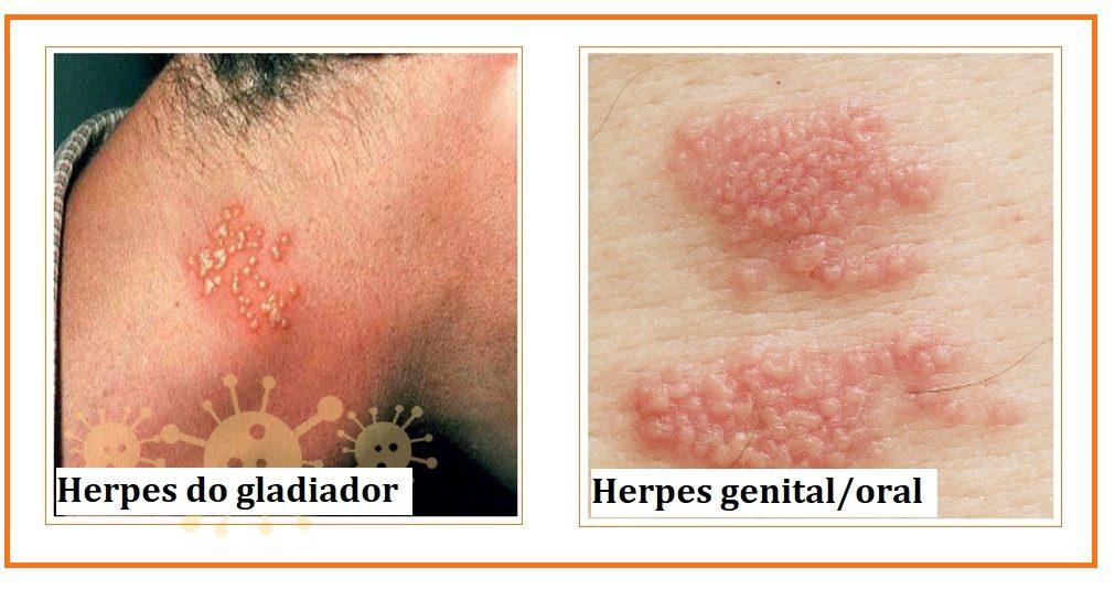 Manifestações do vírus da Herpes