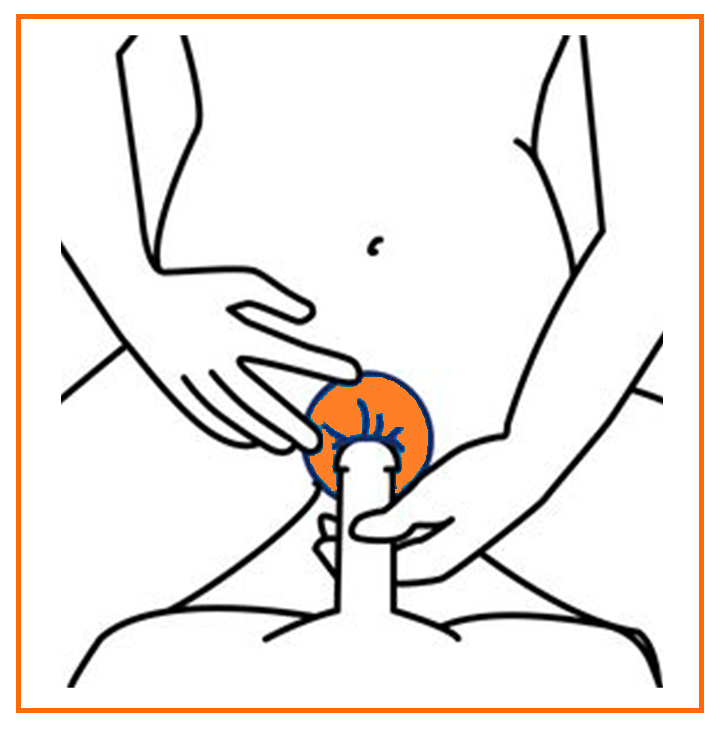 Preservativo Interno - Preservativo Feminino