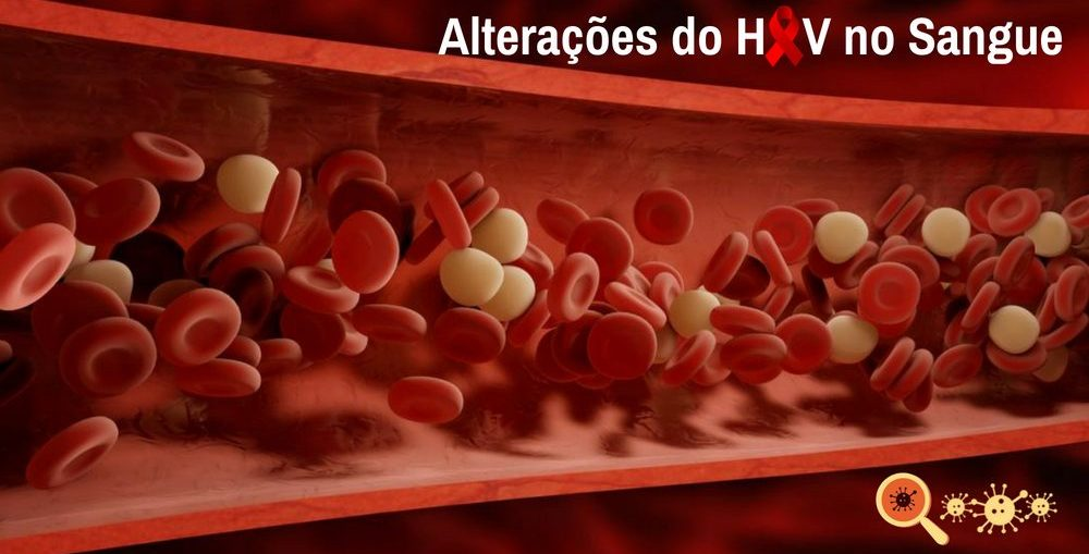 Infectologista - Alterações do HIV no sangue