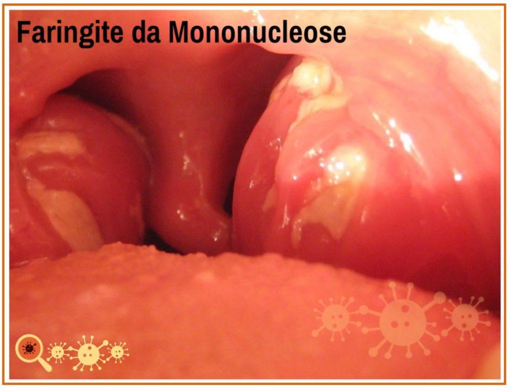 Mononucleose - conheça