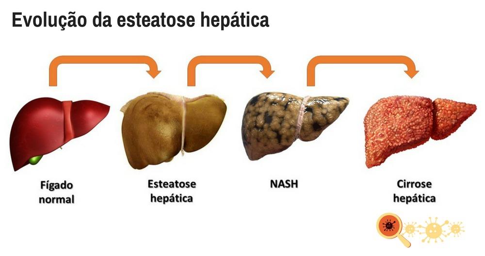 Evolução Da Esteatose Hepática