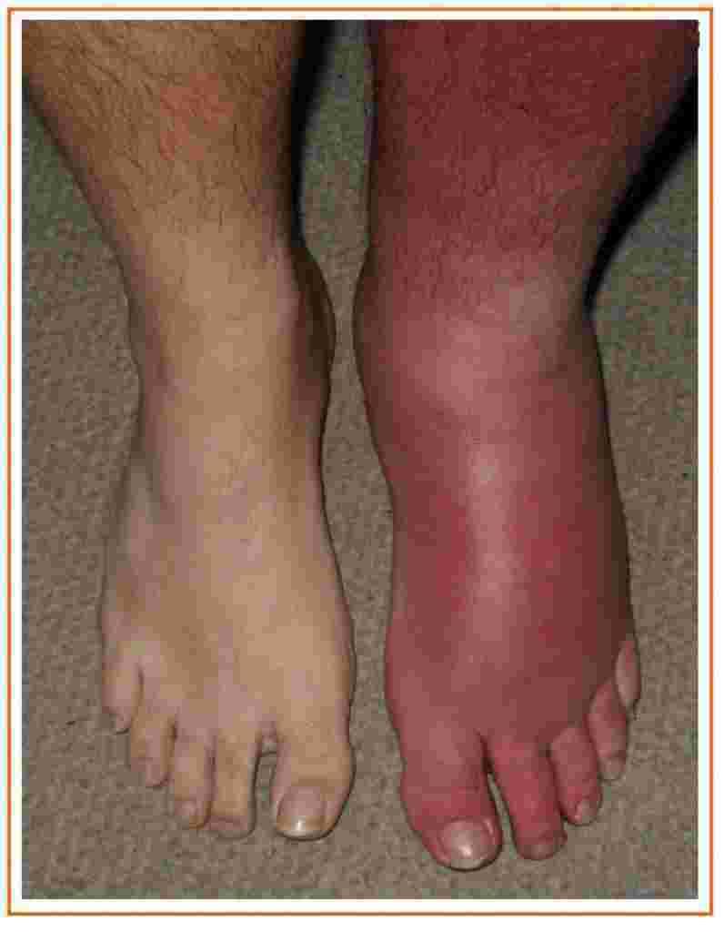 Infecção de pele