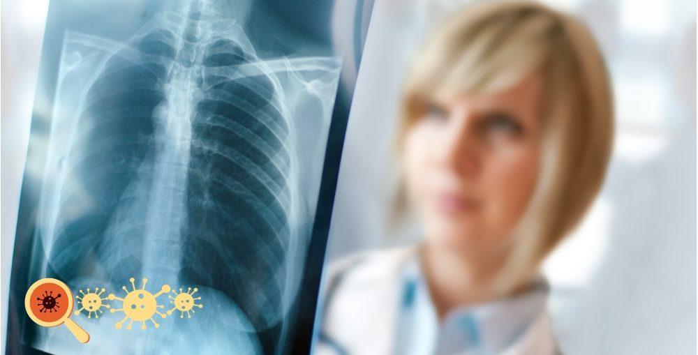 Infectologista - Benzodiazepínicos e Pneumonia