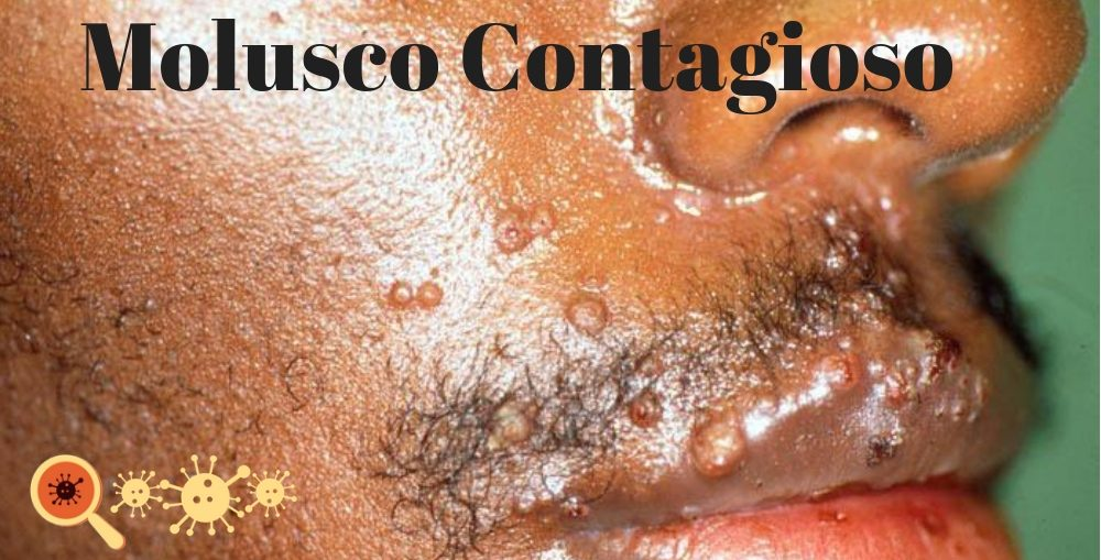 Infectologista - Molusco Contagioso