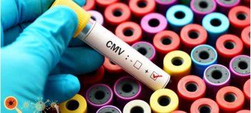 Citomegalovírus ou CMV