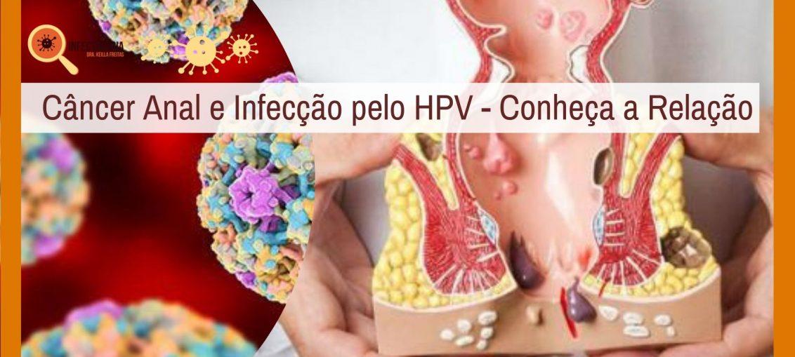 Câncer Anal e Infecção pelo HPV