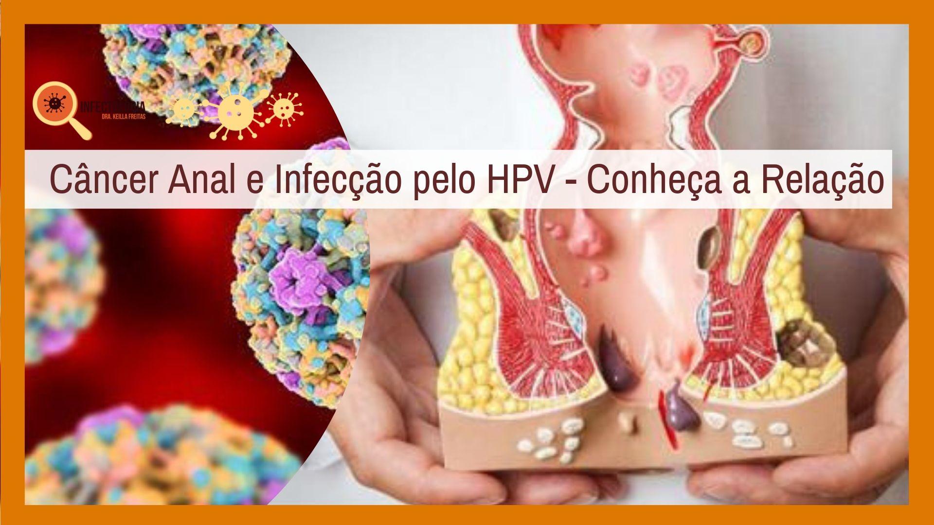 Câncer Anal e Infecção pelo HPV - Conheça a Relação