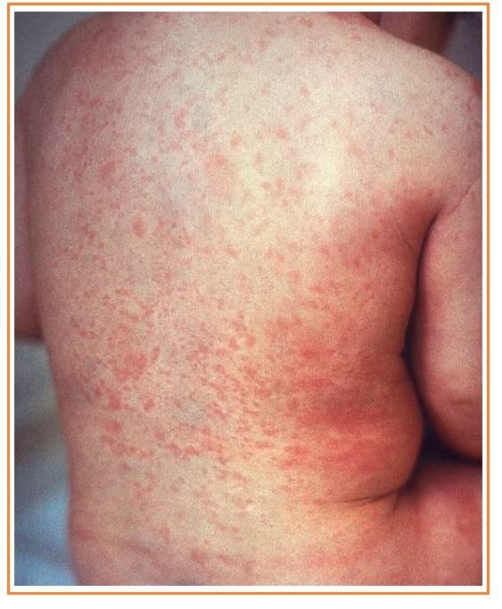 Rubéola: conheça a doença