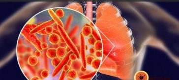 Qual a Diferença entre Pneumonia Viral e Bacteriana?